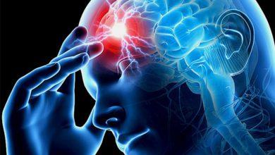 تصویر از علایم هشدار دهنده سکته مغزی کدامند؟