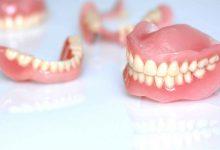 تصویر از پروتز کامل (دست دندان)
