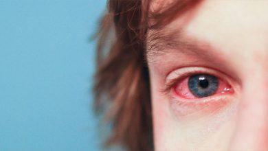 تصویر از التهاب ملتحمه آلرژیک