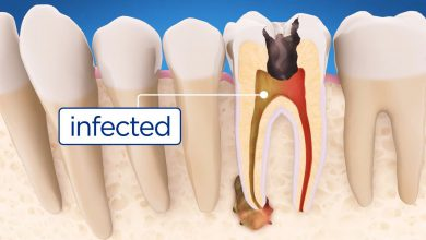 تصویر از عفونتهای دندانی