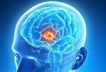 تصویر از تومور مغزی