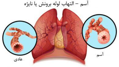 تصویر از بیماری آسم (Asthma)