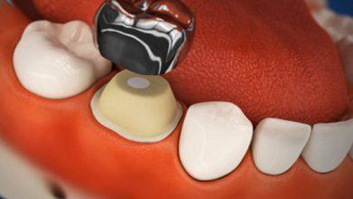 تصویر از روکش دندان شیری «SSC»