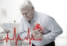 تصویر از حمله قلبی چیست؟