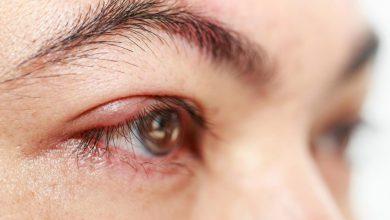 تصویر از التهاب پلک یا بلفاریت