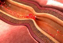 تصویر از علایم بیماری عروق کرونر
