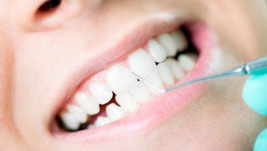 تصویر از جرم گیری دندان