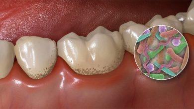 تصویر از جرم و پلاک دندانی