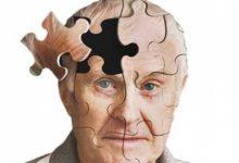 تصویر از بیماری آلزایمر چیست؟