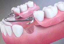 تصویر از پروتز پارسیل در پروتز متحرک دندان
