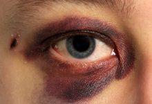 تصویر از ورزش و آسیب های چشم