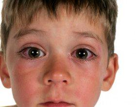 تصویر از کونژنکتیویت شیمیایی در کودکان