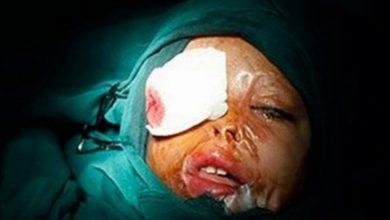 تصویر از سوختگی شیمیایی چشم ها در اطفال