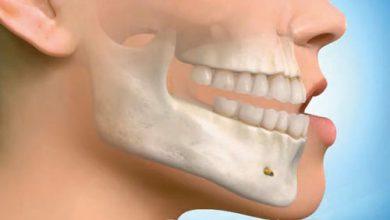 تصویر از مراقبت های بعد از نمونه برداری از استخوان فک پایین (بیوپسی مندیبل)