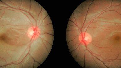 تصویر از انسداد شریان مرکزی شبکیه در بزرگسالان