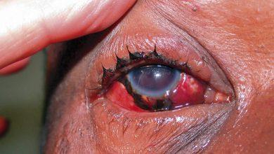 تصویر از پارگی چشم