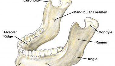 تصویر از نمونه برداری از استخوان فک پایین (بیوپسی مندیبل)
