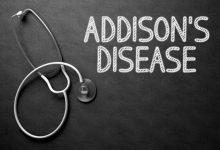 تصویر از بیماری آدیسون