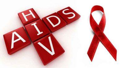 تصویر از ایدز چیست؟