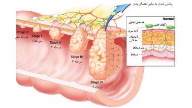 تصویر از سرطان روده بزرگ و راست روده