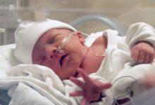 تصویر از مراقبت از نوزاد نارس