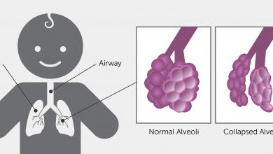 تصویر از سندروم زجر تنفسی نوزادان (RDS)