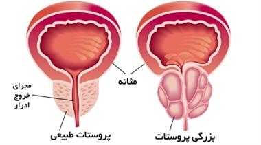 تصویر از بزرگی خوش خیم پروستات (BPH) چیست؟