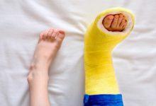 تصویر از شکستگی های استخوانی