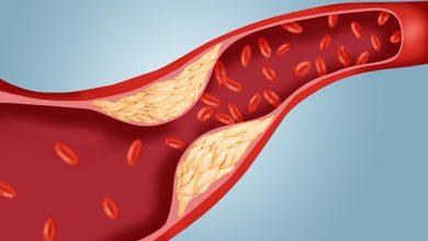 تصویر از افزایش چربی های خون (Increasing Blood Fat)