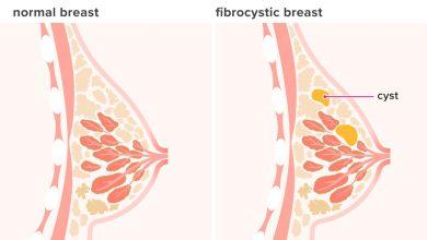 تصویر از کیست پستان (Breast cysts)