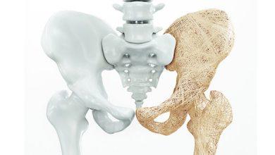 تصویر از پوکی استخوان (Osteoporosis)