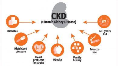 تصویر از نارسایی مزمن کلیه (Chronic kidney failure)