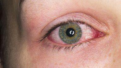 تصویر از التهاب عنبیه (Uveitis)