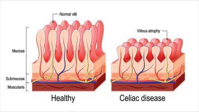 تصویر از سلیاک (Celiac disease)