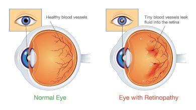 تصویر از رتینوپاتی دیابتی (Diabetic retinopathy)