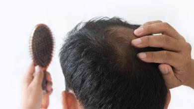 تصویر از ریزش مو (Hair loss)
