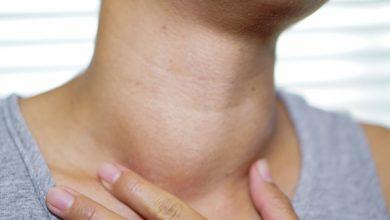 تصویر از پرکاری تیروئید (Hyperthyroidism)