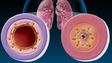 تصویر از برونشیت (Bronchitis)