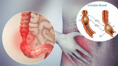 تصویر از سندرم روده تحریک پذیر (Irritable Bowel Syndrome)