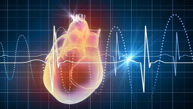 تصویر از تپش قلب (Tachycardia)
