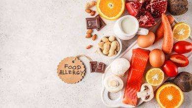 تصویر از حساسیت غذایی (Food allergy)