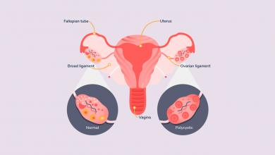 تصویر از سندرم تخمدان پلی کیستیک (PCOS)