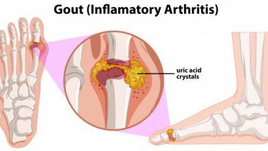 تصویر از نقرس (Gout)