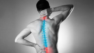 تصویر از کمر درد (Back pain)