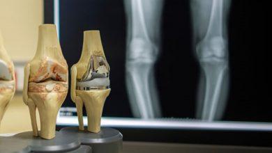 تصویر از استئوآرتریت (Osteoarthritis)