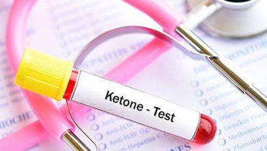 تصویر از کتو اسیدوز دیابتی (Diabetic ketoacidosis)