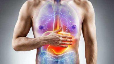 تصویر از سوء هاضمه (درد شکمی بدون زخم) (Indigestion)