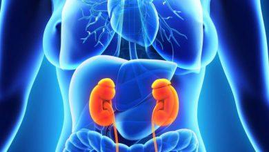 تصویر از کیست های کلیوی (Kidney cysts)