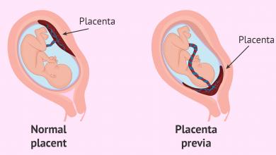 تصویر از جفت سر راهی (Placenta previa)