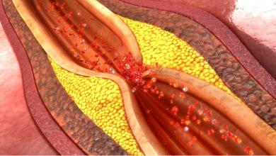 تصویر از بیماری عروق کرونر (Coronary artery disease)